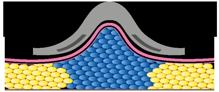 Cryo System
