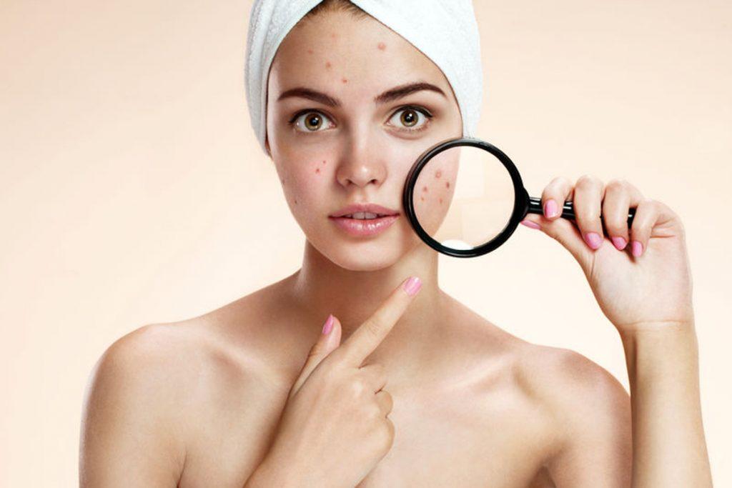 Soin visage acné Sarreguemines